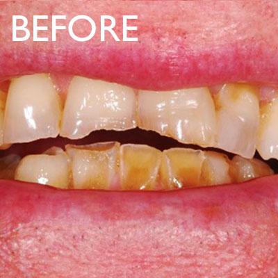 Fixing Heavily Worn Teeth